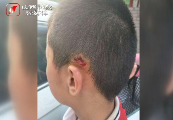 太原市龙城双语实验学校:11岁男孩被老师一把提起,狠狠摔在墙上